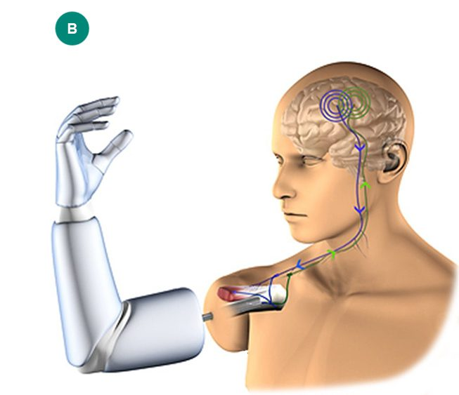 e-OPRA from Integrum, LLC, prosthetics and orthotics in Denver, CO, from Creative Technology Orthotic & Prosthetic Solutions.